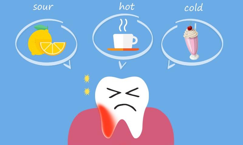 Reasons for Teeth Sensitivity