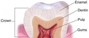 teeth sensitivity causes