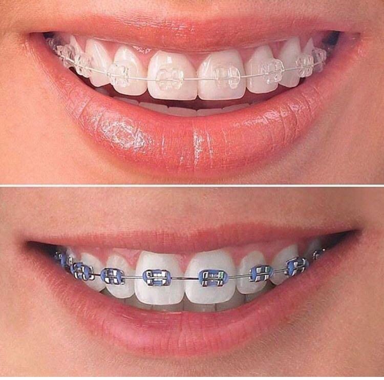 braces treatment